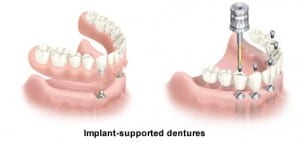apopka-dentist-cohil-family-dentistry