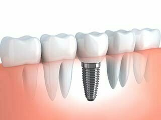 Altamonte Springs dental implants