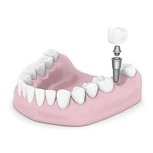 dental implants Altamonte Springs Florida