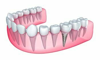 dental implants Longwood Florida