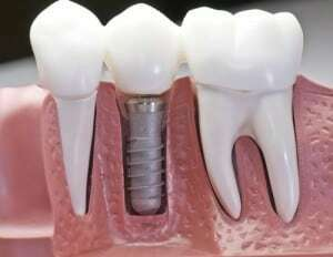 Longwood dental implants