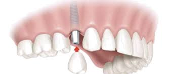 dental implants Maitland Florida